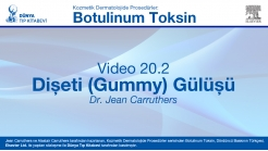 Video 20-2: Dişeti (Gummy) Gülüşü