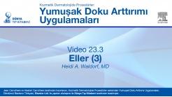 Video 23.3: Eller (3)